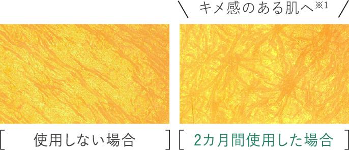 比較写真:[使用しない場合],[2ヵ月間使用した場合]キメ感のある肌へ