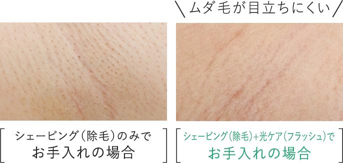 肌の比較写真:シェービング(除毛)のみでお手入れの場合より、シェービング(除毛)+光ケア(フラッシュ)でお手入れの場合の方がムダ毛が目立ちにくい