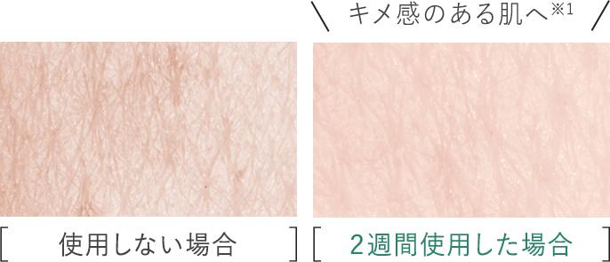 比較写真:[使用しない場合],[2週間使用した場合]キメ感のある肌へ