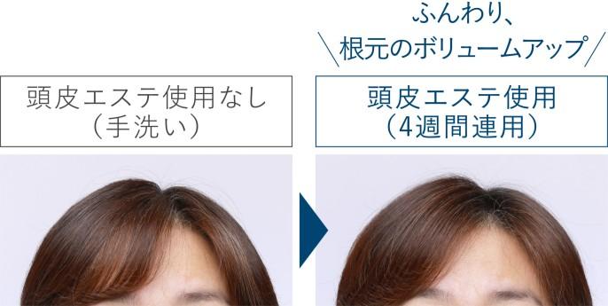頭皮エステ使用なし(手洗い)と頭皮エステ4週間連用の比較写真。頭皮エステ使用後ではふんわり、根元のボリュームアップ