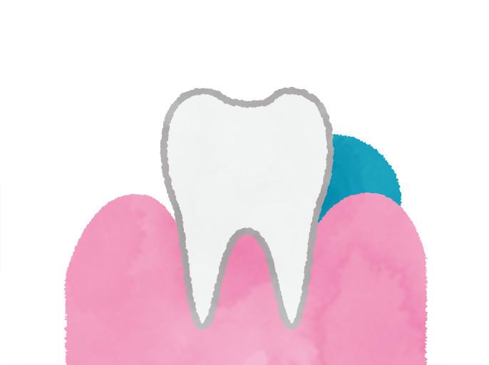 歯と歯ぐきの間