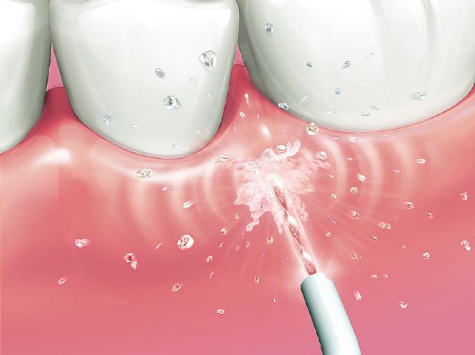 歯ぐきケア